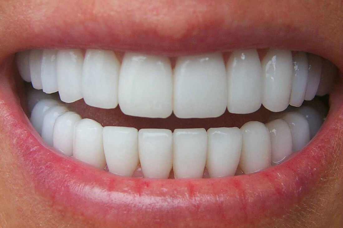 How to get a Hollywood Smile - Ape to Gentleman
