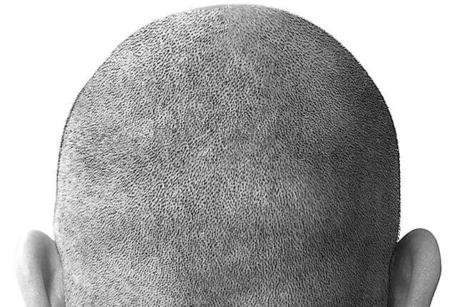Bald-640