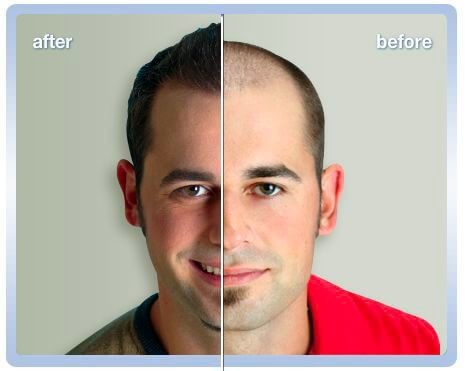 hair-restoration-before-and-after
