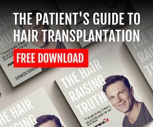 Click To Download the hair transplant ebook
